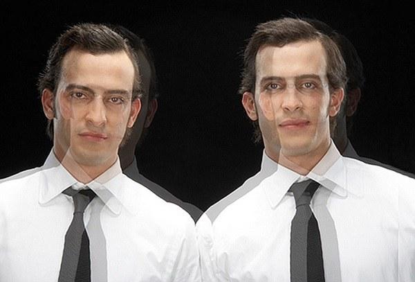 Разновидности синдрома двойника